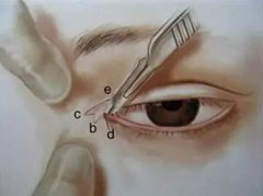 薇琳医学美容开眼角手术,需要进行开眼角的几种情况以